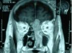 Obstrucciòn nasal  progresiva de la fosa nasal