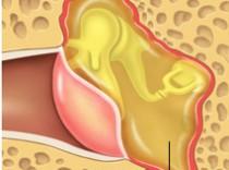 Causas más frecuentes de consulta: Otitis